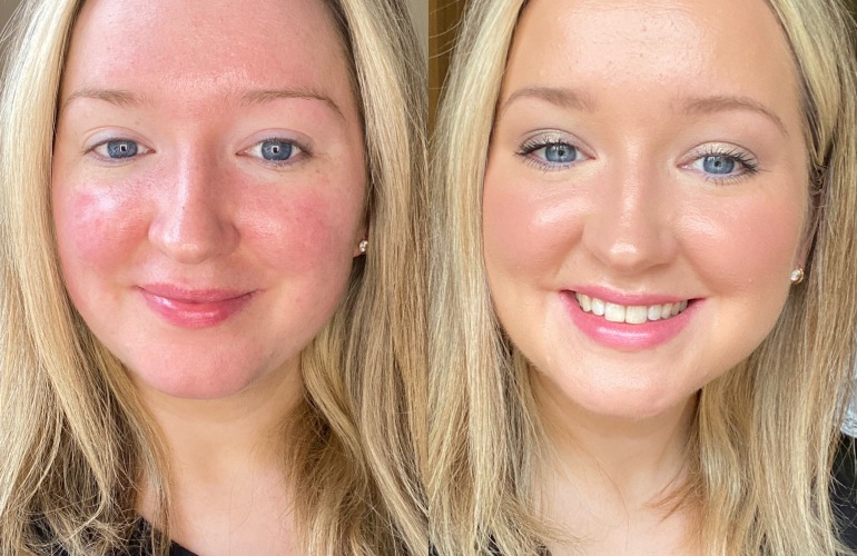 IT Cosmetics CC Cream before and after rose gallagher